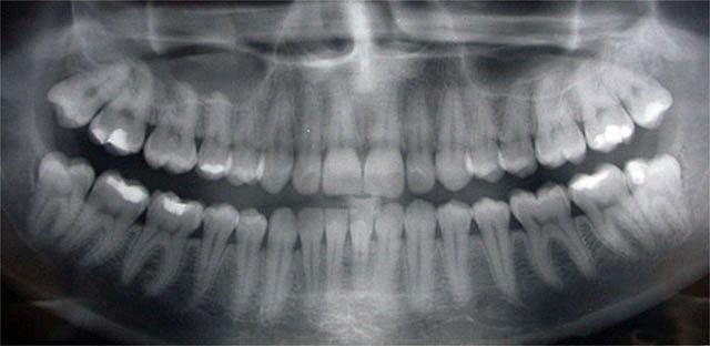 dental-xray.jpg